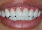 Вредно ли отбеливать зубы с помощью соды и как это делать?